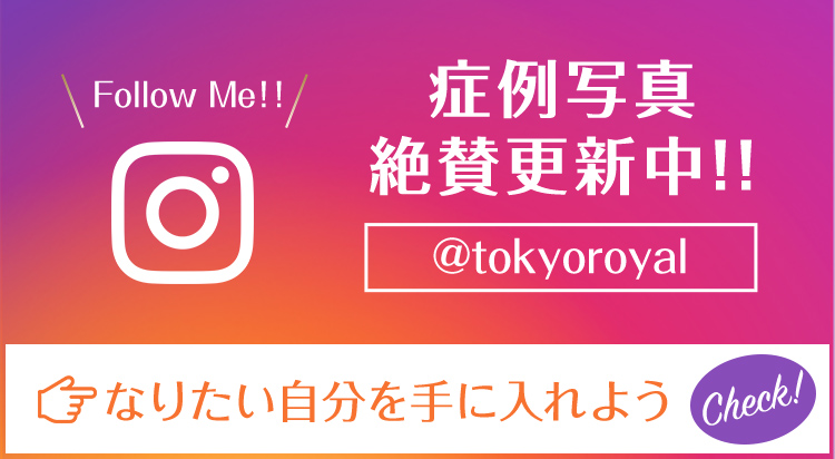 Instagram へのリンク